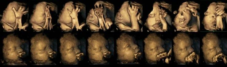 Fumar durante a gravidez - ultrassom mostra o efeito assustador nos bebês