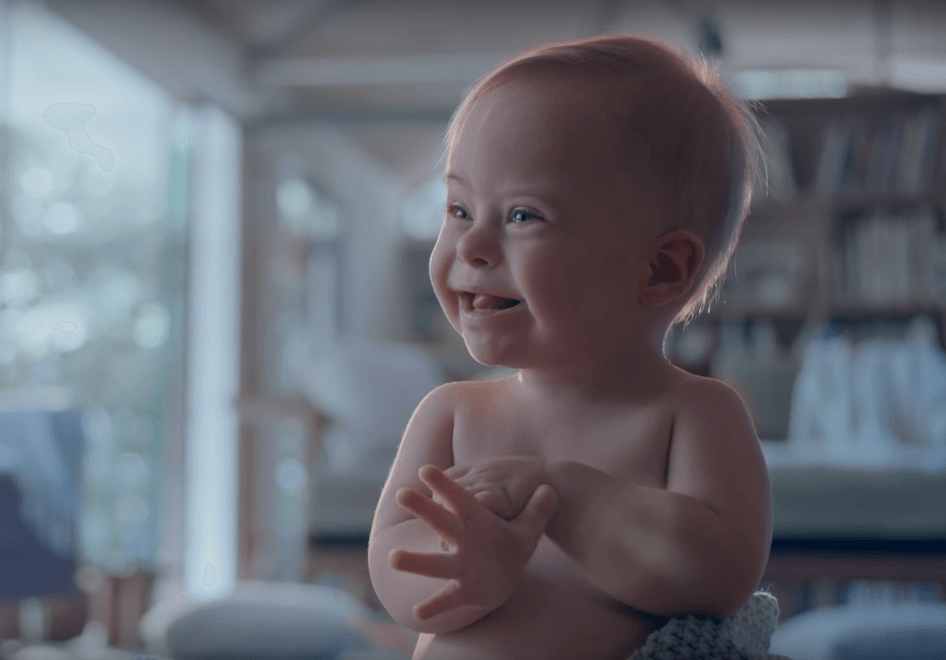 Johnson's emociona o mundo ao usar bebê com Síndrome de Down em comercial - papodepai.com