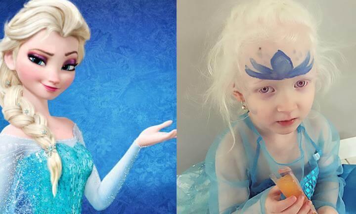 Princesa da Disney ajuda uma criança a aceitar o albinismo